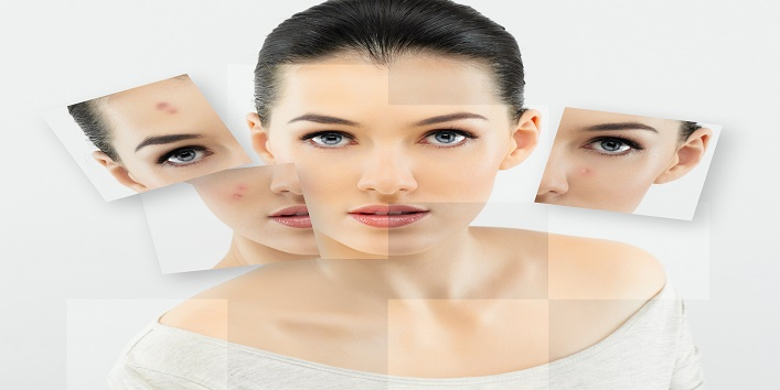 Main reasons behind acne and learn how to deal with it cover