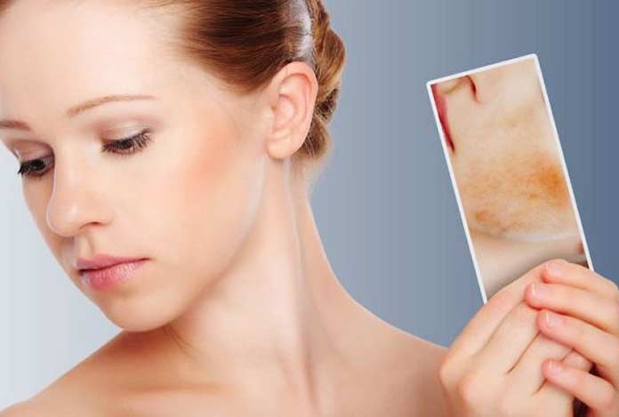 Diagnosis and Tests of Acne