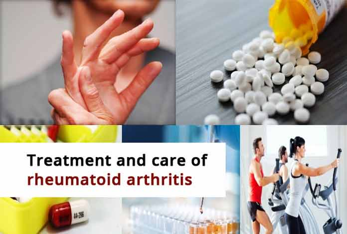 rheumatoid arthritis Treatment and Care