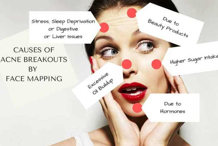 causes and prevention of acne