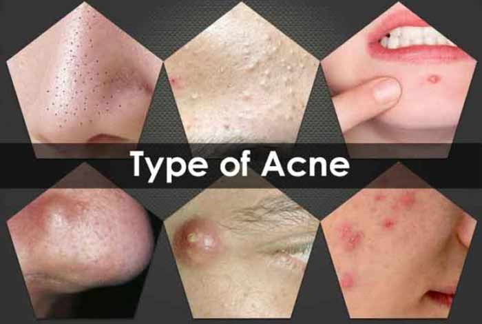 types and symptoms of acne