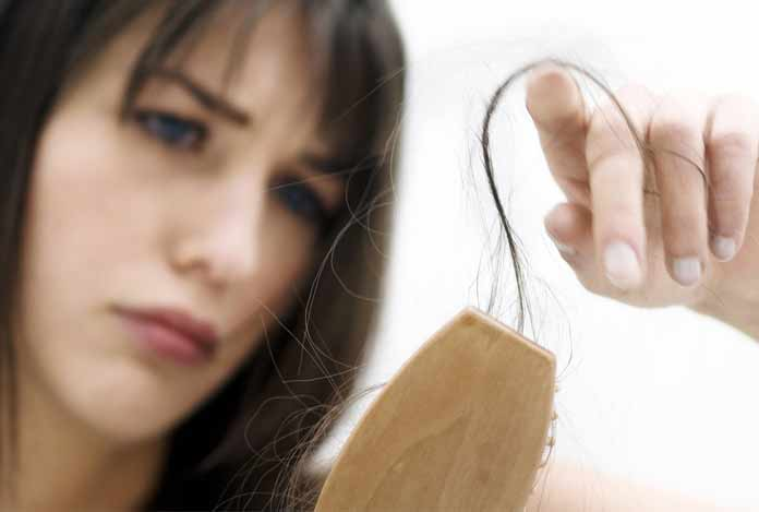 2. Hair Fall – What Role does Dandruff Play in It?