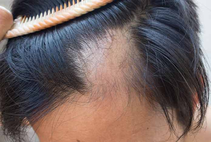 4. Hair Fall – What Role does Dandruff Play in It?