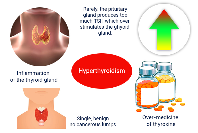 Causes and Prevention of Hyperthyroidism