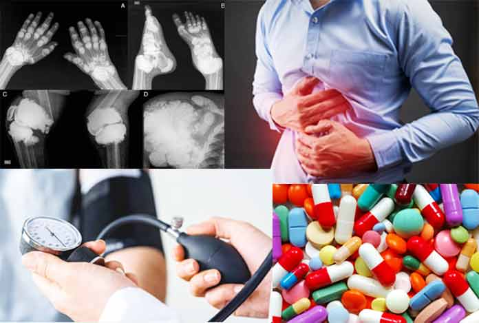 Causes of Kidney Stone