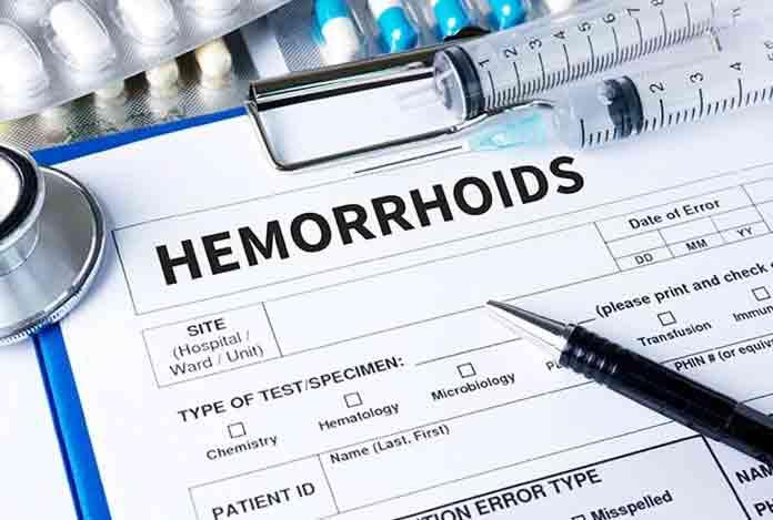 Diagnosis of Hemorrhoids