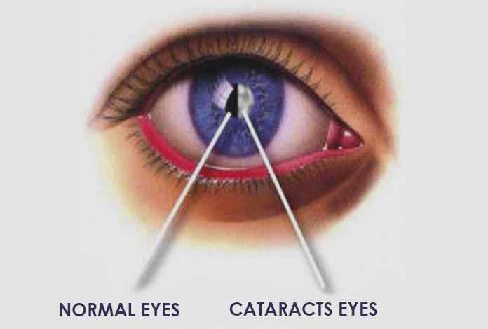 Overview and Facts for Cataract