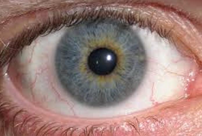 Risk Factors for Color Blindness