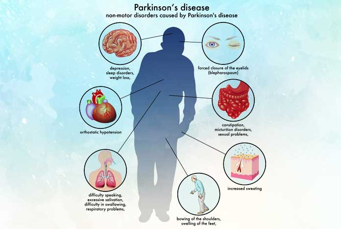 Stages for Parkinson's Disease