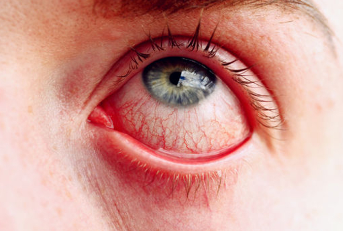 Symptoms for Glaucoma