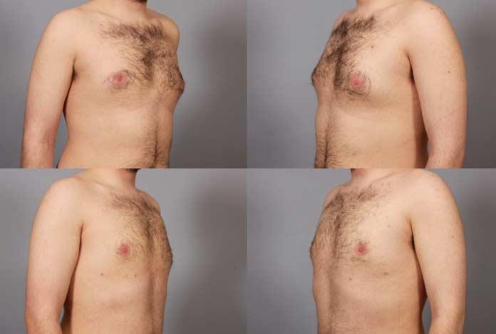 Symptoms for Male Infertility
