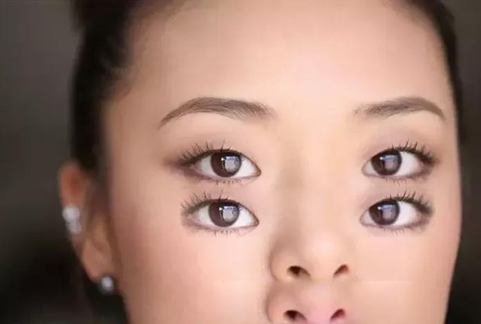 Symptoms of Color Blindness