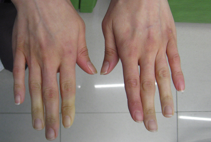 Symptoms of Psoriatic Arthritis