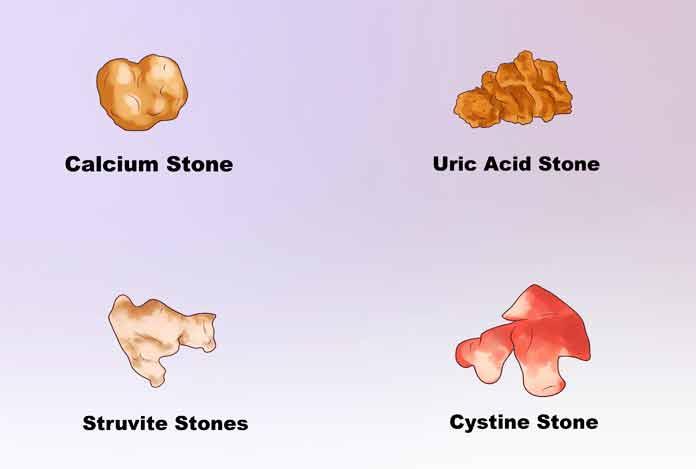 Types of Kidney Stone