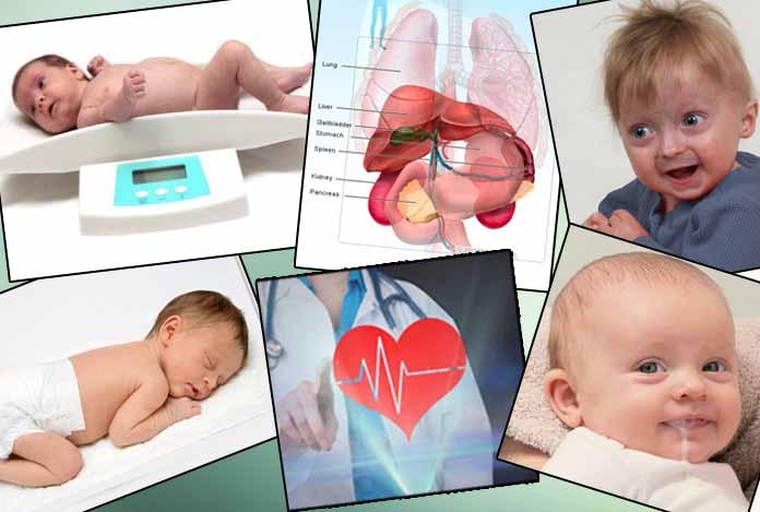 Neonatal Grave's disease Hyperthyroidism