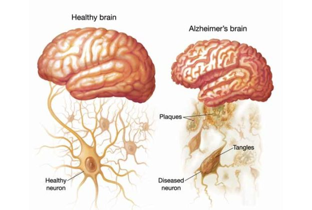a study on the causes of alzheimers disease Evidence builds that dirty air causes alzheimer's, dementia air pollution and cardiovascular disease shortly after that study was published.