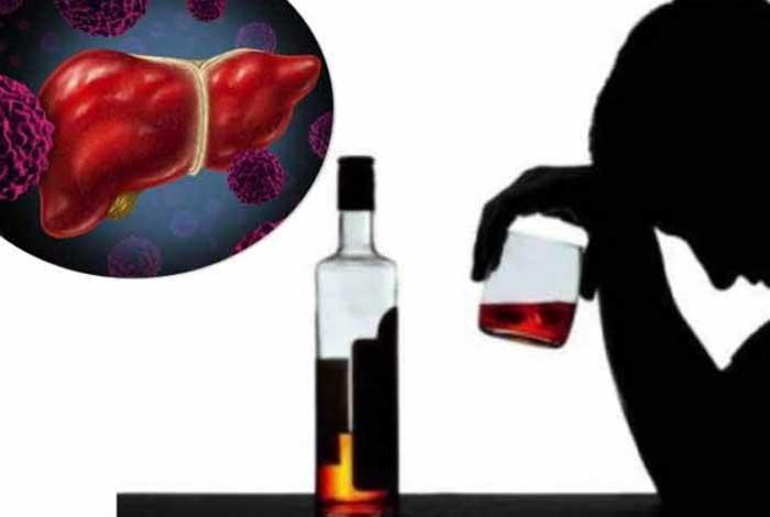 causes of liver cirrhosis