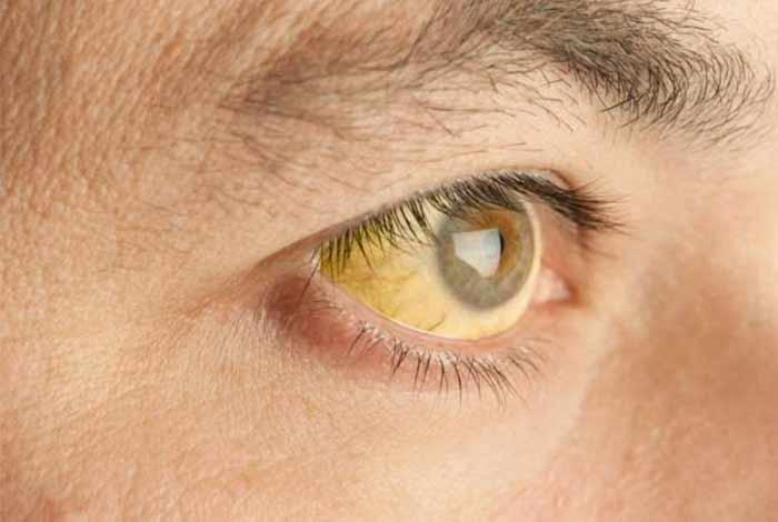 symptoms of hepatitis e are
