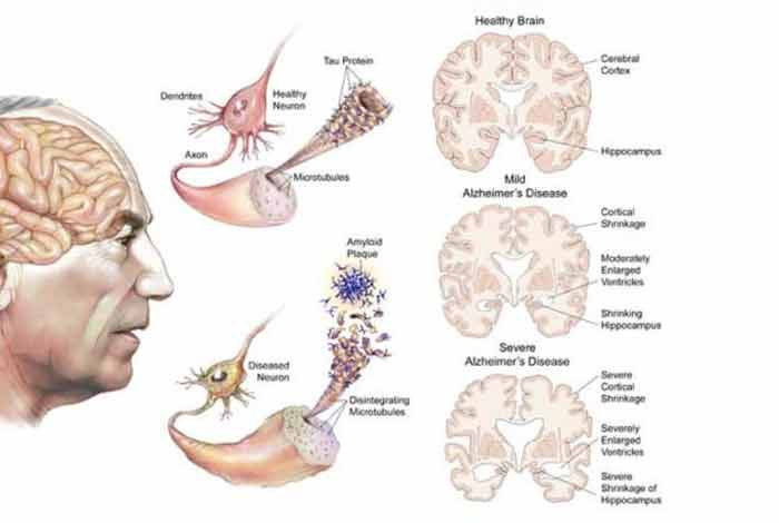 types and symptoms of alzheimer's disease