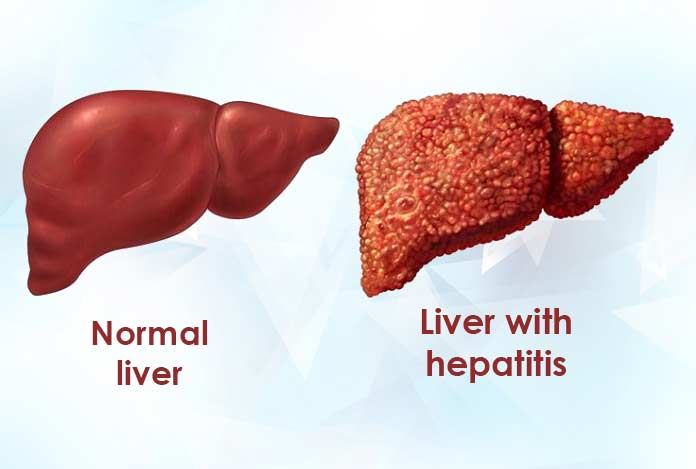 Overview and Statistical Facts for Viral Hepatitis