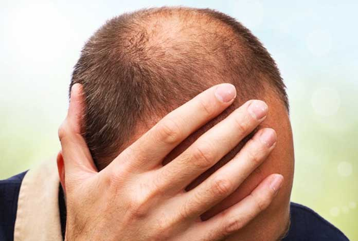 2. Is Hair Loss Related to Age?
