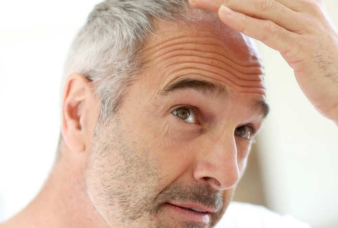 3. Is Hair Loss Related to Age?