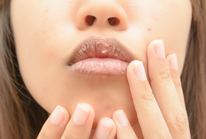 Dry Mouth for Does CBD Have Any Side Effects?