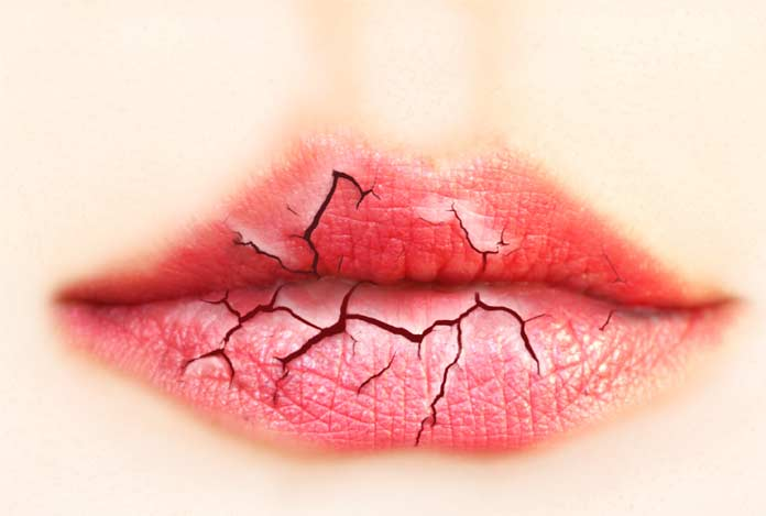 Dry mouth for Cannabidiol — Benefits and Effects