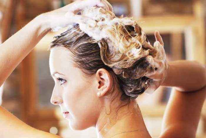 causes and prevention of dandruff