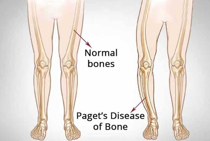 causes of paget's disease of bone