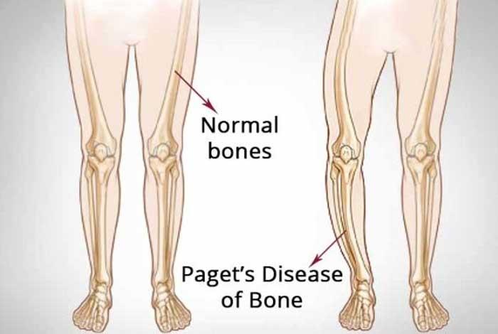 causes of paget's disease of bone