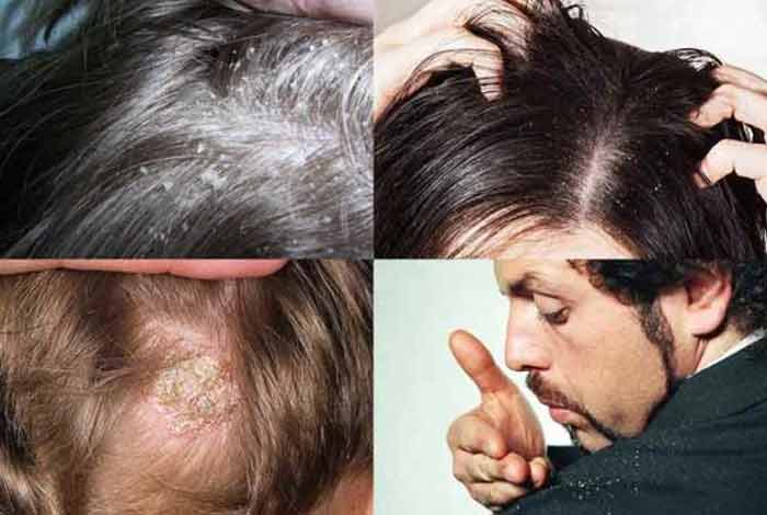 types and symptoms of dandruff
