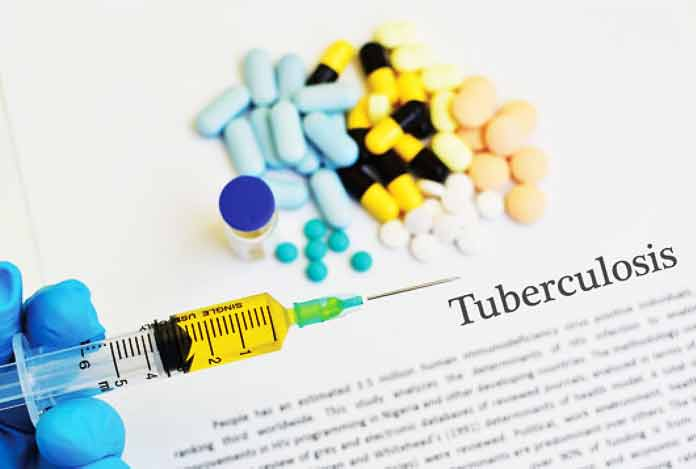 Line of Action Against TB