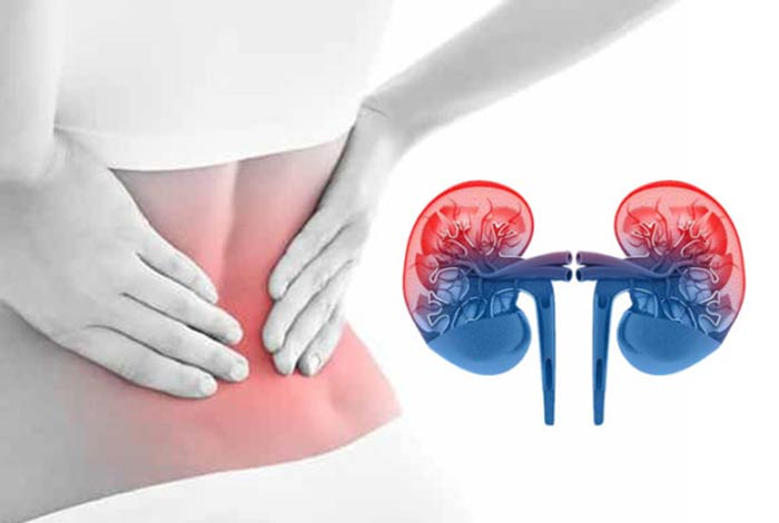 relation between ckd and lupus nephropathy in women