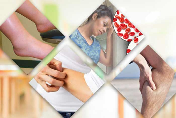 symptoms of chronic kidney disease