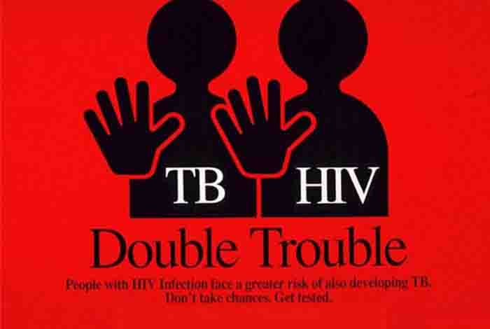tuberculosis and aids