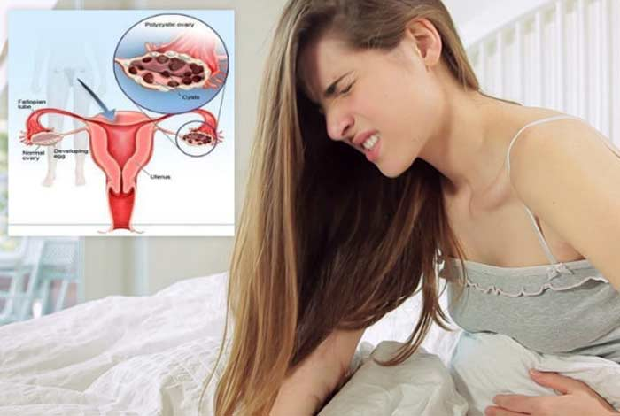 types and symptoms of pcos pcos