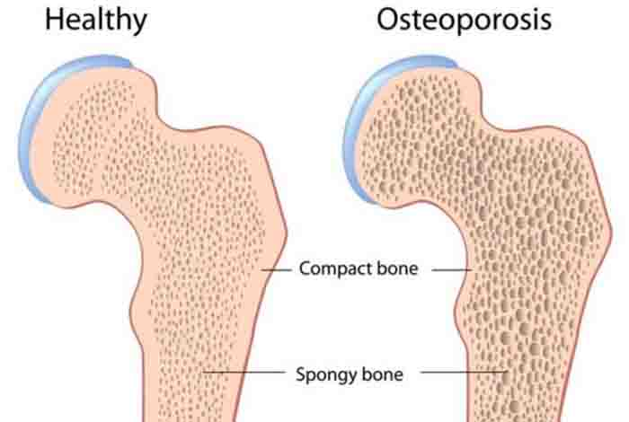 prevents bone loss