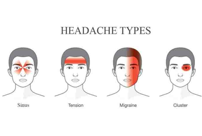 types of headic