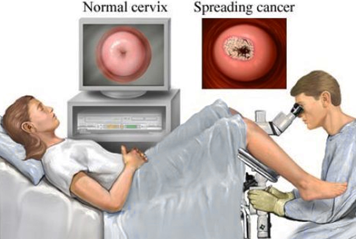 Diagnosis and Tests of Cervical Cancer