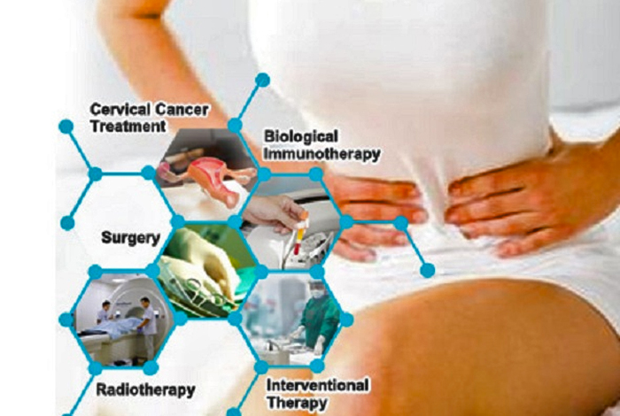 Treatment and Care of Cervical Cancer