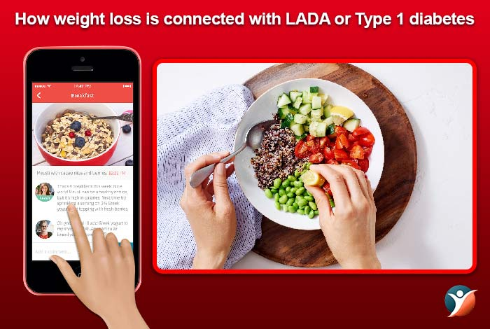 weight loss and type 1 diabetes or LADA