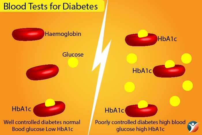 A1C test for diabetes