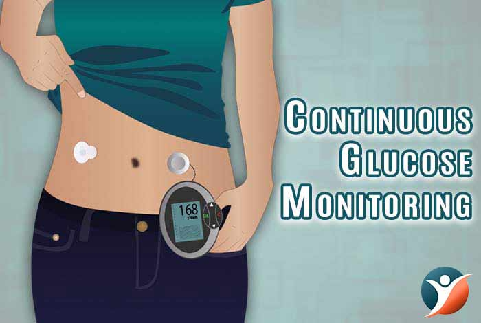 continuous glucose monitoring for diabetes