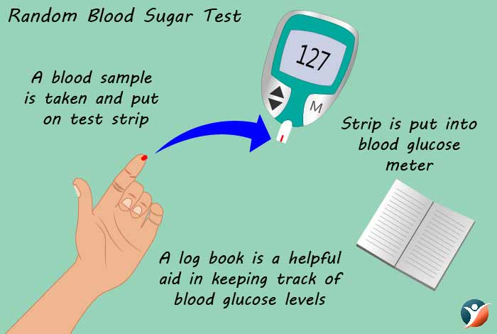 random blood sugar test for diabetes