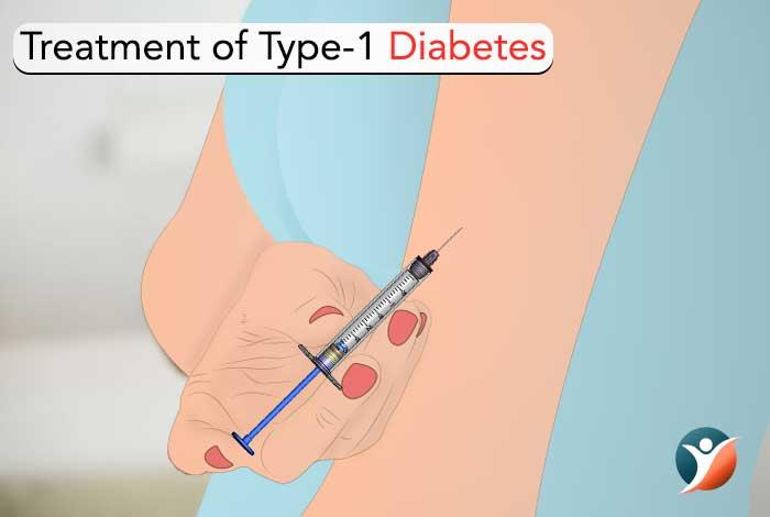 type 1 diabetes treatment