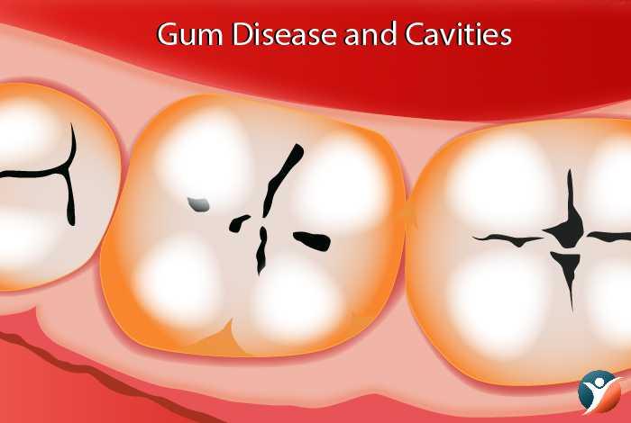 Gum-Disease-and-Cavities-in-diabetes
