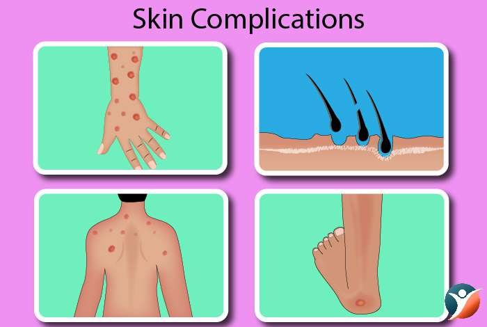 Skin Complications