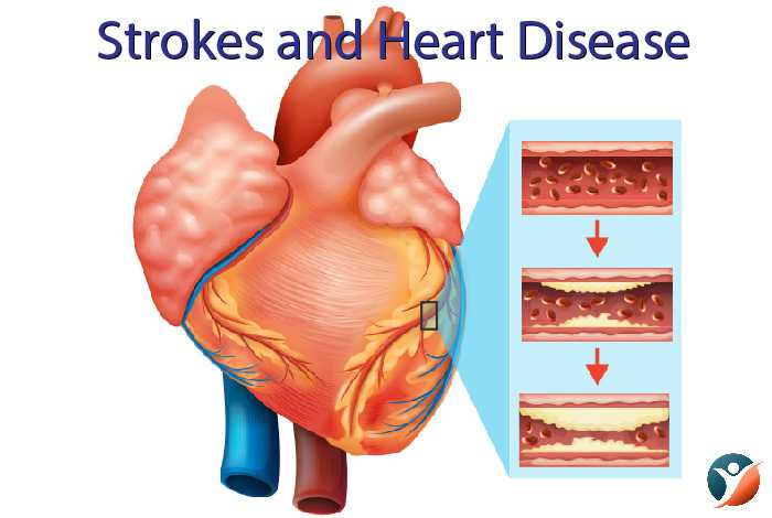 strokes and heart problems in diabetes