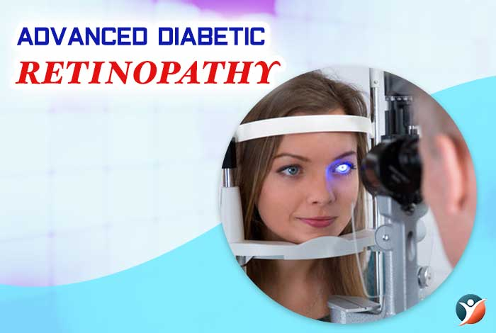 advanced diabetic retinopathy